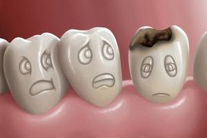 Заболевание зубов кариес: причины, виды и стадии