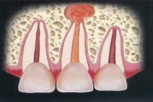 Заболевание зубов периодонтит: виды и осложнения