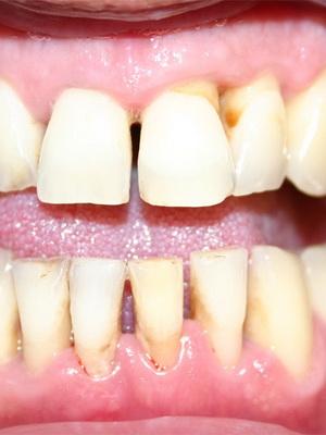 как определить запах изо рта или желудка