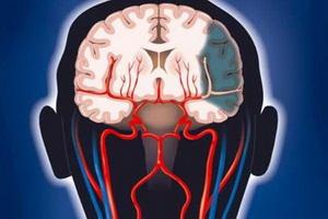 Атеросклероз сосудов сердца и головного мозга