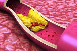 Атеросклероз: что это такое и как развивается болезнь
