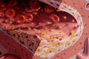 Атеросклероз: факторы риска и методы диагностики