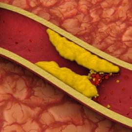 Диета при повышенном плохом холестерине