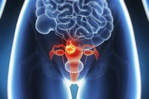 Миома матки: признаки и методы лечения
