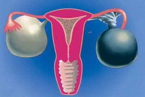 Кисты яичников: виды, признаки и описание