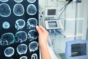 Онкология: причины, виды опухолей и стадии заболеваний