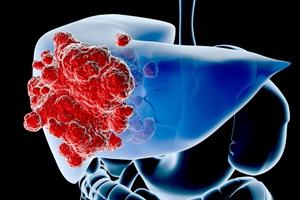 Асцит при раке печени лечение