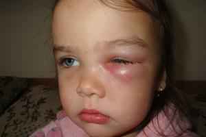 Ячмень на глазу у ребенка: причины появления и как лечить