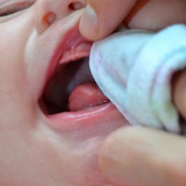 Грибок на лице у новорожденного