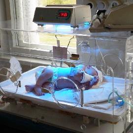 Врожденный вывих бедра у новорожденных: фото, консервативное лечение и реабилитация детей с врожденным вывихом