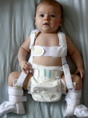 Врожденный вывих бедра у новорожденных: фото, консервативное ...