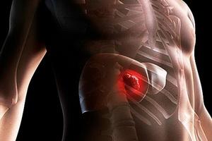 Симптомы рака печени на ранних и поздних стадиях