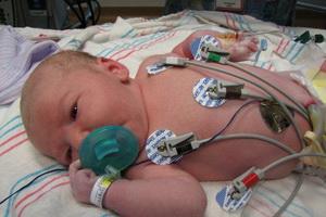 Гипоплазия левого и правого легкого у новорожденного