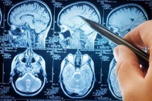 Гипоплазия мозолистого тела у новорожденного ребенка