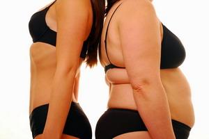 Болезнь Иценко-Кушинга и синдром Кушинга:  симптомы с фото