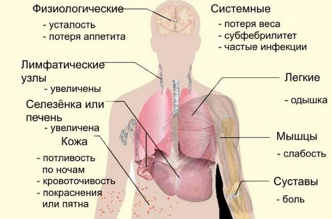 Рак шейки матки цитологически