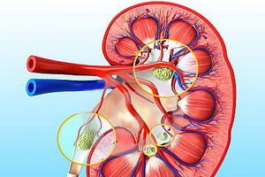 Реноваскулярная гипертензия: патогенез и диагностика