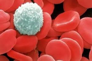 Патология системы белой крови: классификация нарушений