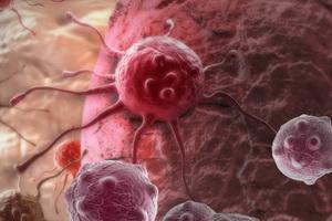 Развитие раковых опухолей: механизмы канцерогенеза