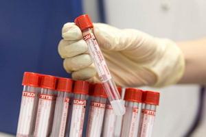 Типы онкомаркеров и методы их исследования
