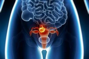 Причины возникновения миомы матки у женщин