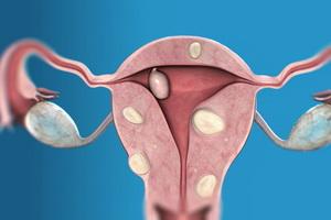 Какие бывают типы узлов миомы матки