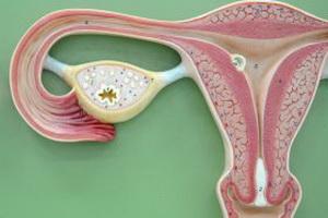 Гиперплазия эндометрия и миома матки – опасное сочетание
