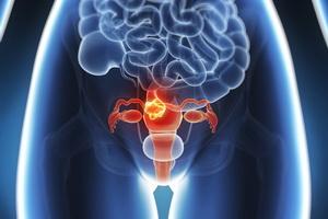 Профилактика развития миомы матки