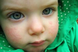 Крапивница у детей и взрослых