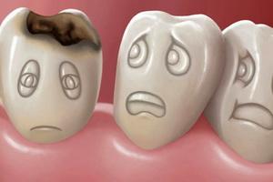 Кариес зубов у детей: особенности, лечение и профилактика
