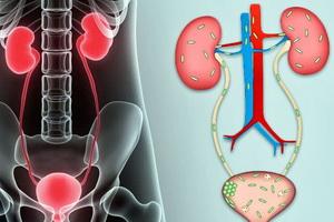 Заболевания мочевыводящих путей у детей: диагностика и лечение