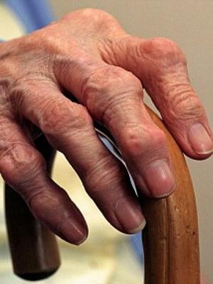 Инфекции вызывающие отек суставов поиск бад суставы