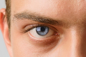 Глаукома: виды заболевания, признаки и лечение