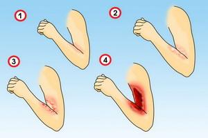 Химические ожоги кожи: степени, первая помощь и лечение