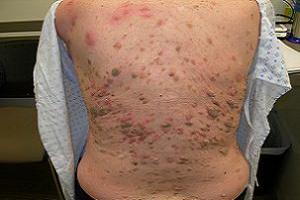 Актинический, старческий или солнечный кератоз кожи