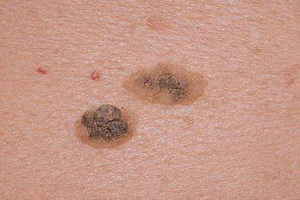 Виды предракового кератоза кожи: симптомы и лечение