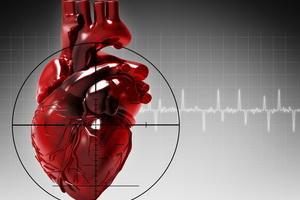 Инфаркт миокарда: варианты течения, главные признаки и осложнения