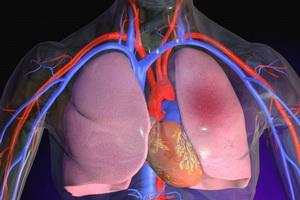 Тромбоэмболия легочной артерии: признаки развития и терапия