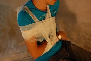 Повреждения опорно-двигательного аппарата и виды иммобилизации