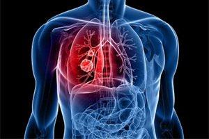 Туберкулез легких: основные формы, симптомы и лечение