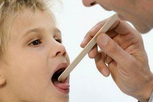 Стоматит у детей и взрослых: виды, причины, симптомы и лечение