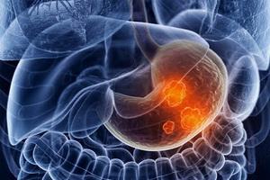 Рак желудка: причины, основные симптомы и лечение