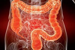 Непроходимость кишечника: причины, признаки и терапия