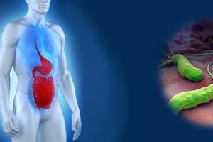 Гастрит дистального отдела желудка