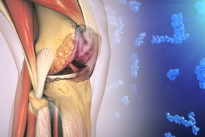 лфк при заболеваниях суставов желатином