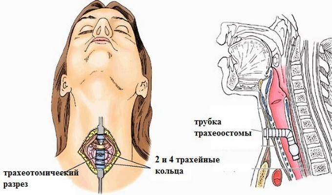 Отек горла – причины, симптомы. Как снять отек горла в домашних условиях?