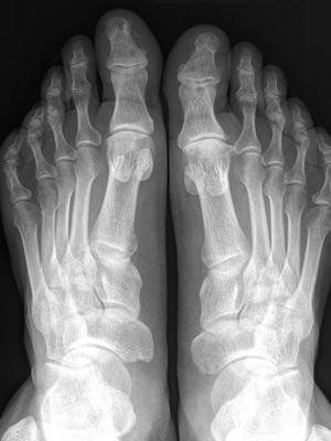 Заболевание остеопороз костей у женщин