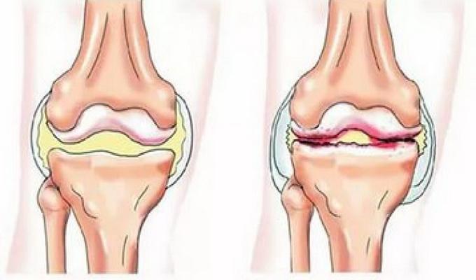 Острый гнойный (инфекционный) артрит