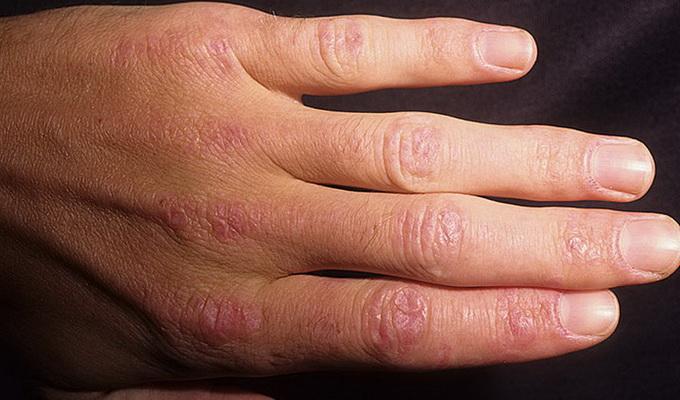 Болезнь системный дерматомиозит