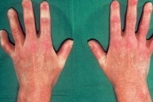 Системная склеродермия – хроническая болезнь